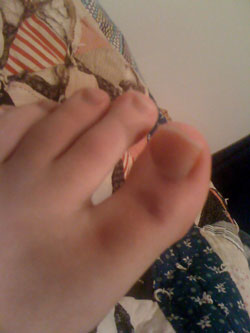 liz's banged up toe